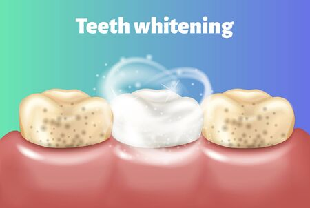 Teeth whitening concept. Dirty tooth and other is clean and white.