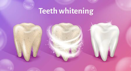 Tooth before, in process and after whitening. Teeth whitening in realistic 3d vector illustration. Illustration