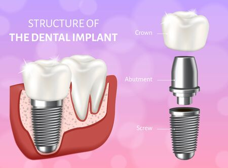 Vector illustration depicting the structure of the dental implant. Medical poster and infographics. Design concept of the dental implant process. Components of implant - screw, abutment, crown.