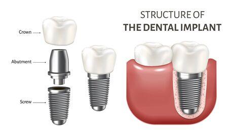 Medizinische Vektorillustration, die eine Struktur des Zahnimplantats zeigt. Realistisches Bild isoliert auf weißem Hintergrund. Poster mit menschlichen Zähnen und Zahnimplantatteilen. Schraube, Krone und Abutment.