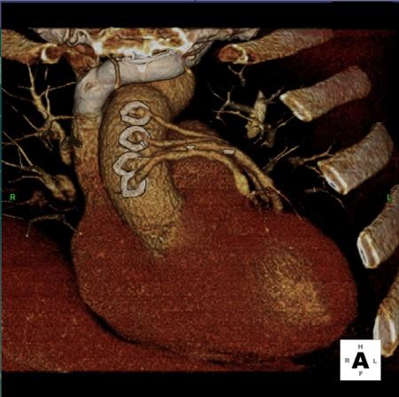 Coronary Artery Bypass Graphs on Cardiac CT Stock Photo - 12290258