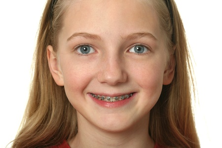 Young girl with dental braces on her teeth isolated on white Stock Photo