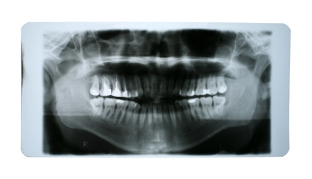 x rays negative: X-ray shoot of human mouth with fillings isolated on white