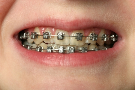 Dental braces on teeth photo
