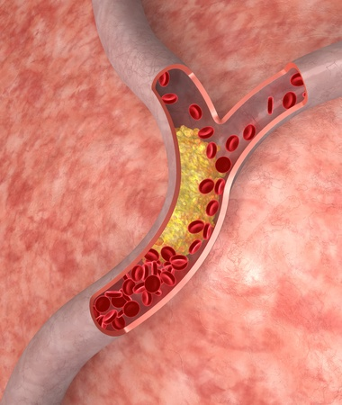 Cholesterol plaque in artery. Medical concept Stock Photo - 8681884