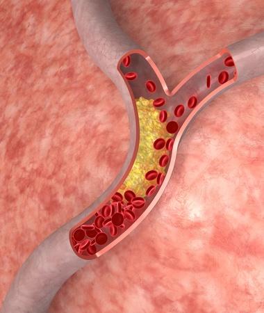 Cholesterol plaque in artery. Medical concept Archivio Fotografico