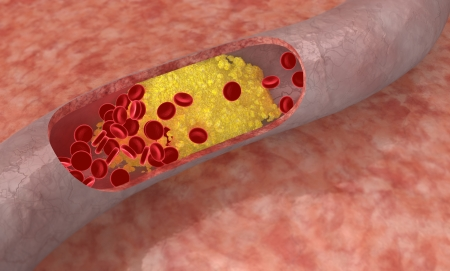 Cholesterol plaque in artery. Medical concept photo