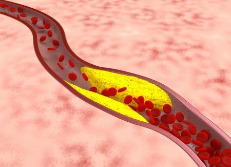 vaisseaux sanguins: Ath�roscl�rose - concept m�dical Banque d'images