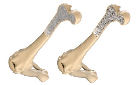 인간의 대퇴골 뼈 - 정상 및 골다공증 스톡 콘텐츠