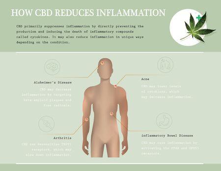 how cbd oil reduces inflammation is infographic Illusztráció