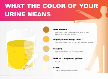The color of urine can tell the health. Illustration