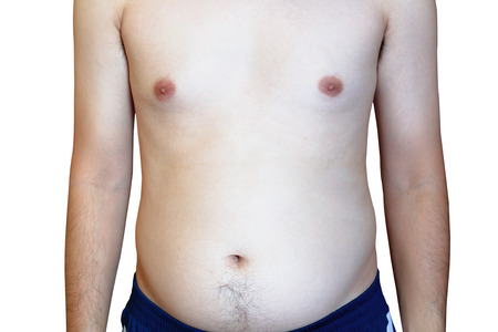 embolism: Man are more likely to Clog arteries, Fat man with a big belly. Belly Fat, Diet, Man at risk for diabetes, isolated on white background, clipping path Stock Photo