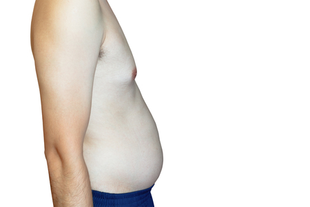 embolism: Man are more likely to Clog arteries, Belly Fat, isolated on white background, clipping path Stock Photo