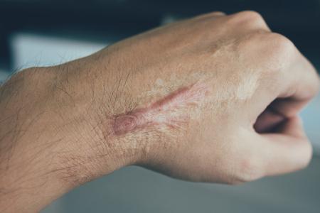 Cicatriz en piel humana queloide en la mano.