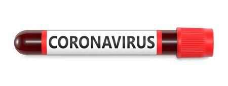 Test tube with Coronavirus positive blood 2019-nCoV