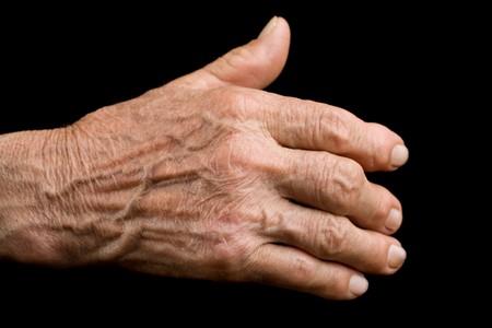 huesos: Mano del hombre viejo que muestren indicios de artritis