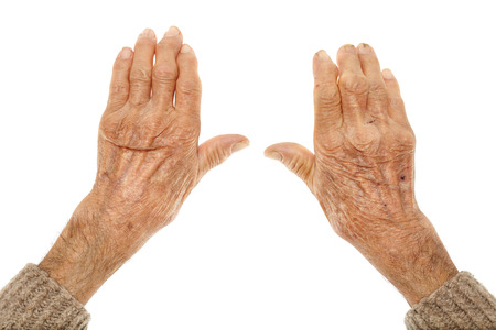 incapacitated: Closeup of hands with artritis of an old farmer man