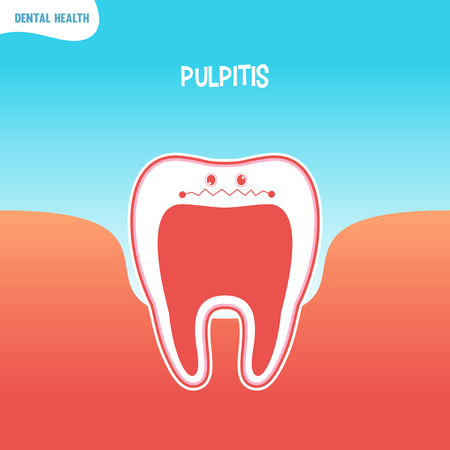 pulpitis: Vector cartoon bad tooth icon with pulpitis
