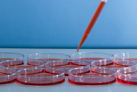Pipette over group of Petri dish photo