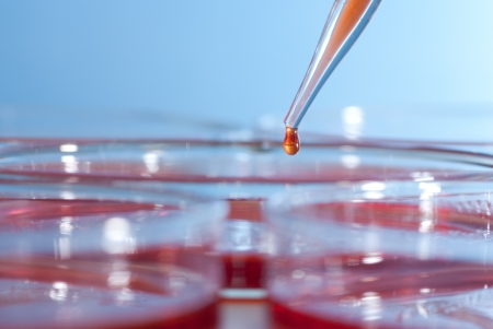 Pipette over group of Petri dish Stock Photo - 17865772