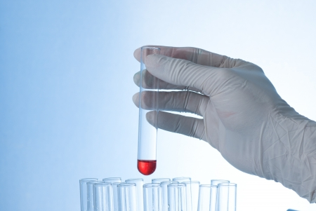 burette: A test tube in hand with color water