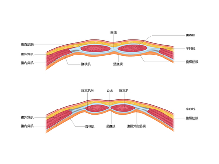 Sheath of rectus abdominis