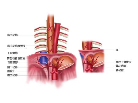 Slokdarm, slokdarm, abdominale slagader en gemeenschappelijke variatie