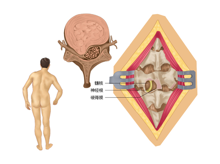 Disc herniation Stock Photo