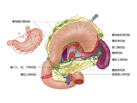 Lymfedrainage van de maag Stockfoto