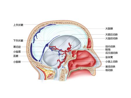 硬膜硬膜形成と内部の大脳動脈