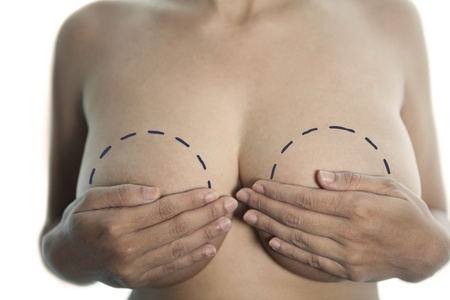 Woman holding her breast with marks isolated on white photo