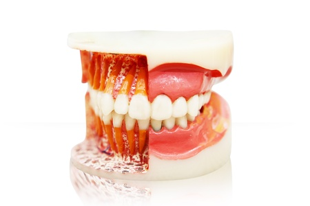 gingivitis: Closeup of denture isolated on white background