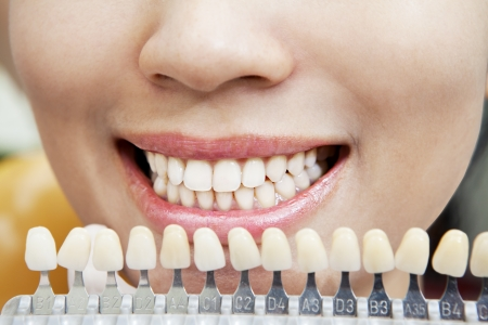 whiteness: Examining a whiteness of teeth of a patient at the dentist