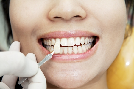 teeth whitening: Examining a whiteness of teeth of a patient at the dentist