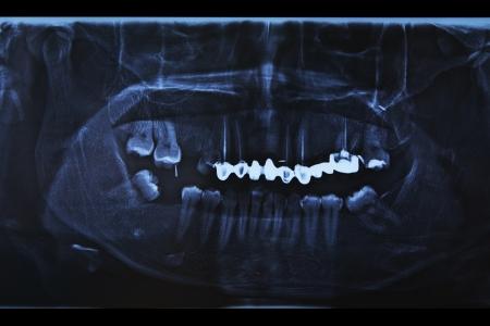 molares: Dental de rayos X que muestra un diente perdido, endodoncia, y los rellenos en los molares y premolares Foto de archivo