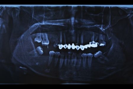 root canal: Dental x-ray showing a missing tooth, root canal, and fillings in molars and bicuspids Stock Photo