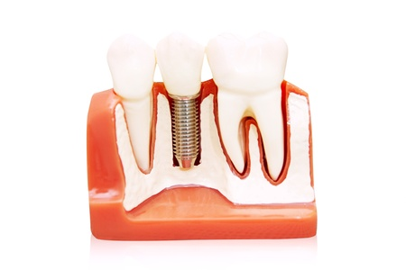 implantology: Dental implant - implanted in jaw bone. Isolated on white Stock Photo