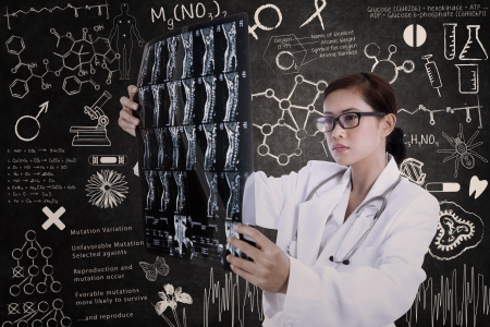 serious doctor: Beautiful female doctor is holding x-ray results in the lab with written blackboard