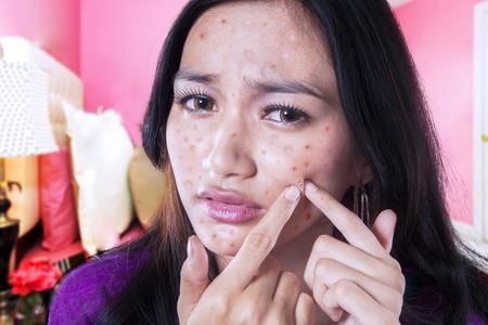pus: Ritratto di infelice adolescente acne commovente sul suo viso in camera da letto a casa Archivio Fotografico