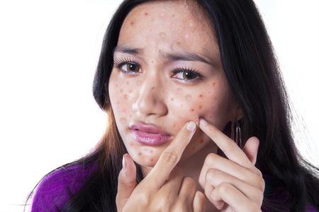 Adolescente enlever bouton sur sa joue en le touchant avec ses doigts, isolé sur blanc Banque d'images