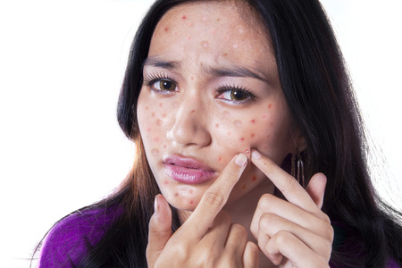 adolescence: Teenage girl removing pimple on her cheek by touching it with her fingers, isolated on white