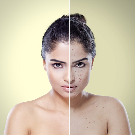 Comparison portrait of young Indian woman with problematic skin and after skin care in the studio