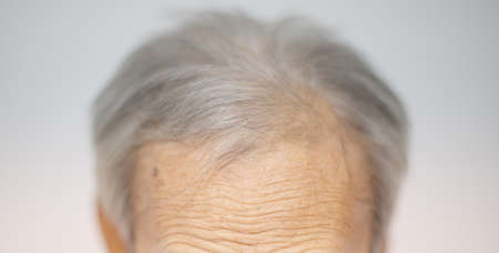 Elderly man with grey-haired and the wrinkle on the forehead for show the aged of human. Imagens