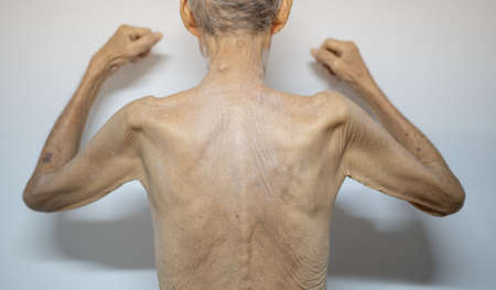 The thin old back man skin with close-up old skin with the wrinkle old skin .