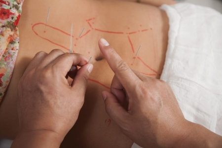 Inserting Acupuncture Needles Stock Photo - 21121600