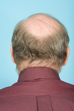 balding: Rear view of balding man