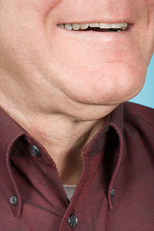double chin: Chin of a man