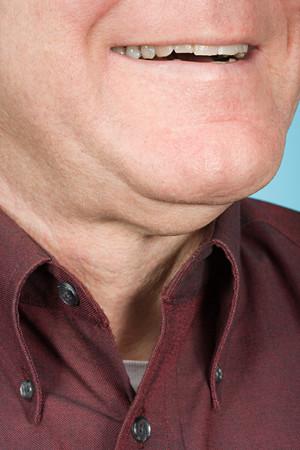 chin: Chin of a man