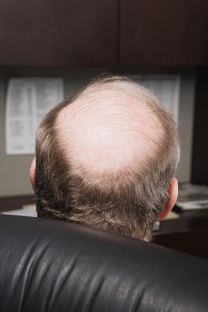 bald head: Mature businessman with bald head Stock Photo