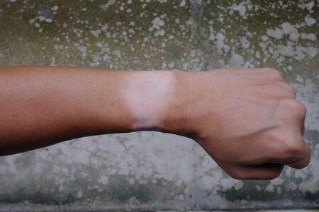 Wrist mark skin without sunburn from wristwatch on left hand isolated Standard-Bild